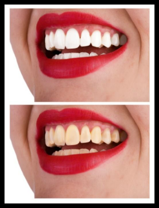 Teeth Whitening can make all the difference.