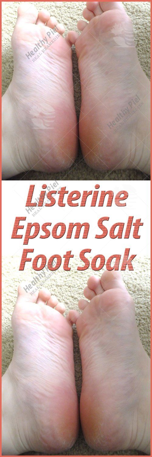 Listerine Epsom Salt Foot Soak Listerine and Epsom salt foot soak will ease down the finite blood arteries within the feet. the quantity of stress that our feet sustain in daily routine causes foot ache and diverse different issues. The blood flow in arteries lowers down and combined with the...