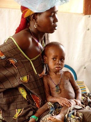 "What does ""malnutrition"" mean, or ""stunting""? The WFP ..."