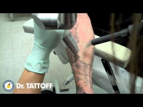 Tattoo Removal Before and After - Half Sleeve Laser Tattoo Removal - Houston, Texas  WOW!!!So that's how it's done.I guess tatoos are not forever anymore.That's why more and more people are getting tham,you can remove them easily.
