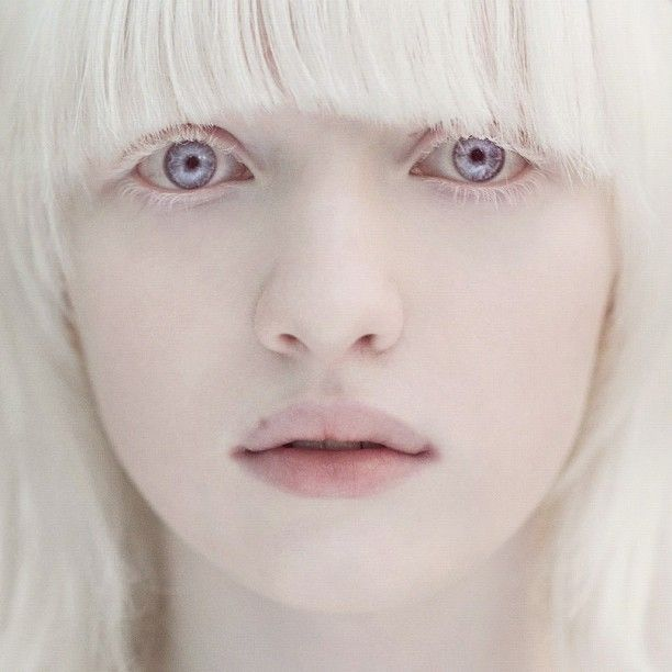Axis Layla Fey - A natural albino, has difficulty seeing in bright light and is easily sunburned.  She is lovely, such a beautiful face.