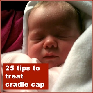 25 tips to treat cradle cap @MumsMakeLists
