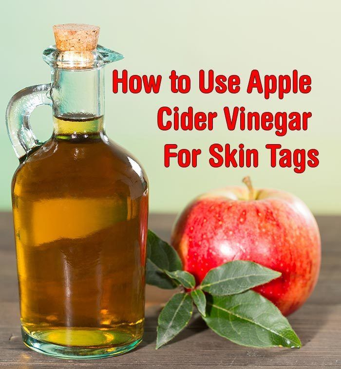 How to use Apple Cider Vinegar for Skin Tags. Apple Cider Vinegar in a home remedy that can be used to safely remove skin tags as well as moles and warts. http://www.wartalooza.com/general-information/what-are-hpv-warts