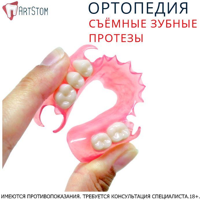 👉Этапы создания нейлонового протеза. Прежде чем пациенту установят конструкцию, она должна пройти несколько этапов изготовления: ⭕Стоматологическое обследование включает в себя полное устранение повреждений зубных тканей, лечение слизистых ротовой полости.  ⭕Снятие оттисков. ⭕Изготовление вспомогательной гипсовой модели в лаборатории по слепкам.  ⭕Нанесение воска на модель в местах размещения кламеров и на фронтальных зубах.  ⭕Создание дубликата модели зуботехническим силиконом…