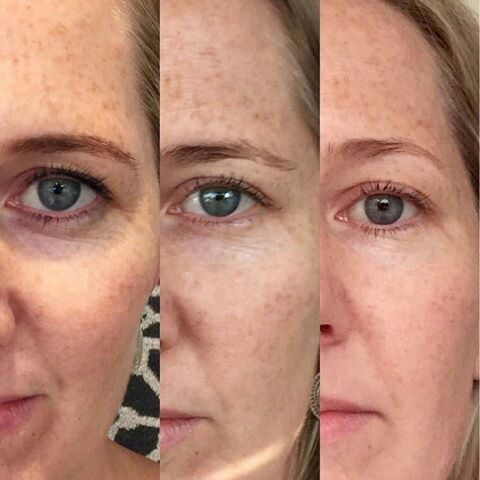 Eye Effects 3 #darkcircles #bags #wrinkles All Gone!! Au.buynucerity.com/FrizzleChristensen