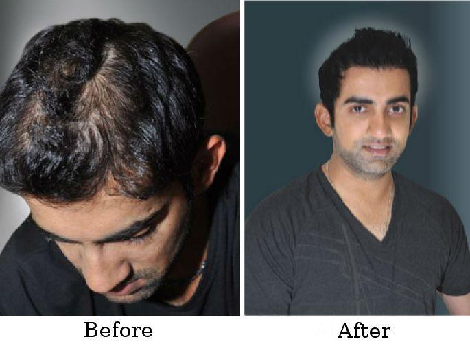 Gautam Gambhir, Member of the Indian National Cricket Team, after ...