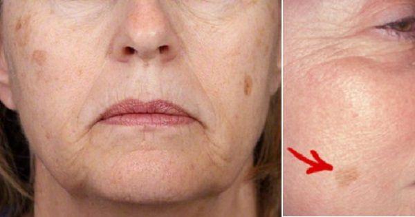 Un masque beauté naturel pour éliminer les taches brunes de vieillesse! 2 ingrédients seulement!