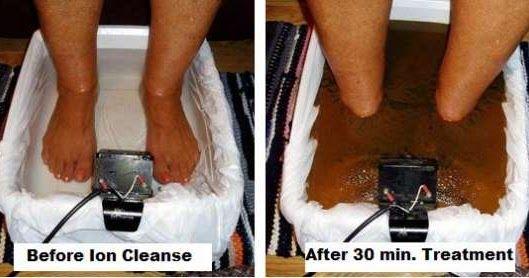 Il existe plusieurs types de procédures de désintoxication à travers les pieds, en profitant de l'une de ces méthodes peut conduire à une vie plus saine et au nettoyage naturel du corps . Voici comment ils fonctionnent: