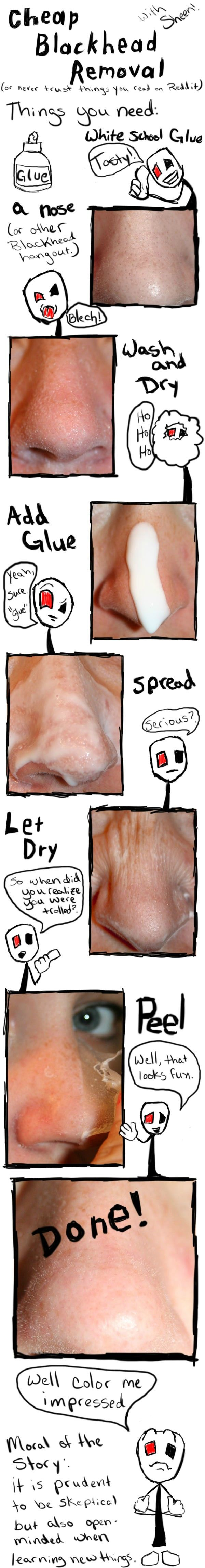 Cheap Blackhead Removal (or never trust things you read on Reddit)