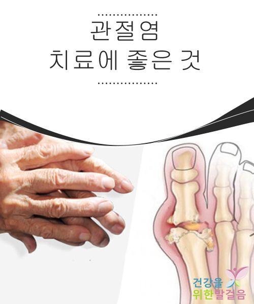 관절염 치료에 좋은 것  관절염은 만성 질환으로, 어떤 경우 관절염을 완전히 치료할 수 있는 방법은 수술 뿐이다. 최대한 수술을 피하기 위해서, 관절염 에 어떤 것이 좋은지 기억하고 있는 게 좋다. 관절염은 두 가지 종류로 구분되고 각각 다른 증상을 유발한다.
