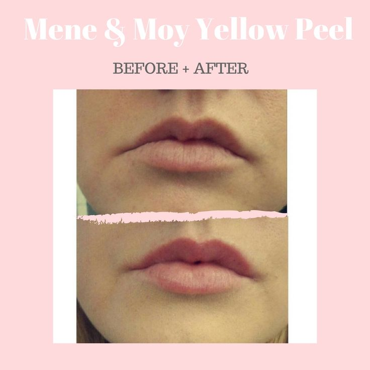 Boost lips with this two-stage lip plumper - a stimulating balm to boost lips and a barrier balm to protect them. Read the lovely Jades review here:  https://goo.gl/xBKMSw 10% OFF - Code: LOVE  #Lips #Mene&Moy #retinol #plump #boost #volume #kissable #nofillers #dermacaredirect #before #after #staff #review #love #yellowpeel #results