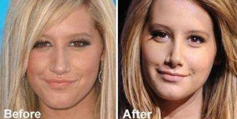 best plastic surgery: Celebrity Plastic Surgery Nose Job