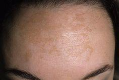 Пигментные пятна на лице: причины и возможно ли лечение?