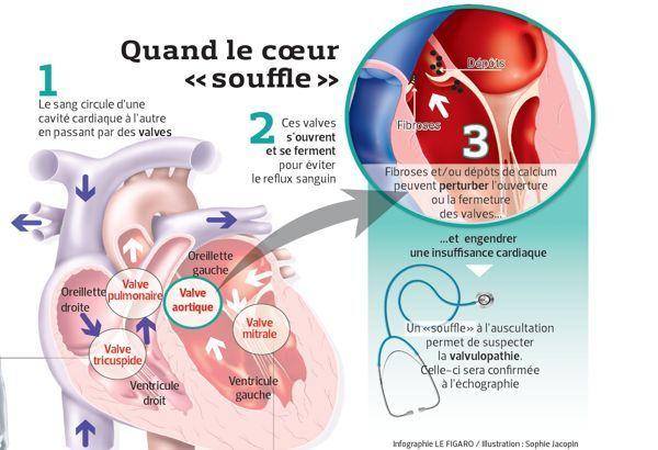 flux sanguin au niveau de l'artère stenosé - Recherche Google