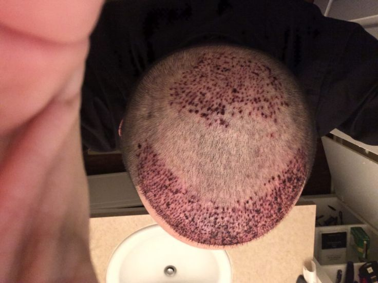 Hair Transplant Day 2 Post Op Recovery