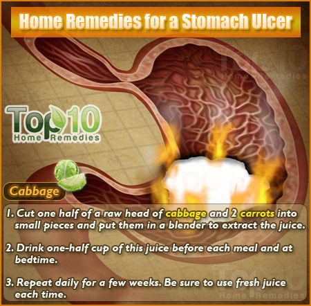 Home Remedies for a Stomach Ulcer