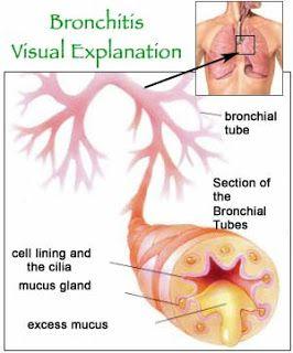 bronchitis merupakan penyakit infeksi pada saluran bronchus yakni saluran menuju paru-paru, bronchitis bisa diobati dengan temulawak