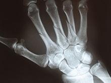 Перелом пястных костей