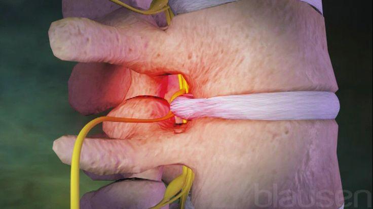 """La columna consta de 33 vértebras que protegen la médula espinal y brindan estabilidad al torso. La región inferior de la columna se denomina columna lumbar. Esta región de la columna es la zona más común de dolor de espalda.  El dolor de la región inferior de la espalda (lumbalgia) generalmente se clasifica como mecánico o compresivo. Al dolor mecánico normalmente se lo llama """"dolor de espalda"""" debido a su asociación con el movimiento de la columna. Este tipo de dolor es causado por…"""