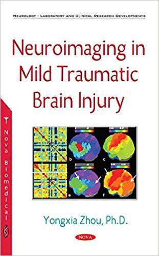 Neuroimaging in Mild Traumatic #BrainInjury #neuroskills
