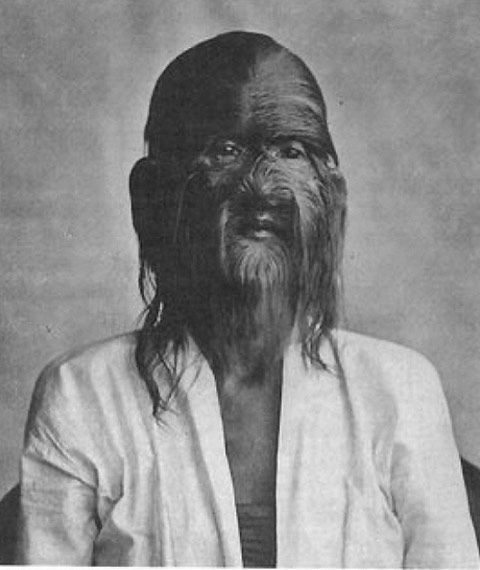 This is Su Kong Tai Djin. Born in China in 1849 suffering from hypertrichosis. His poor and superstitious family believed his appearance to be a sign of evil and so they left the baby in the forest to die. Tai Djin was discovered in the forest by a Shoalin monk and was taken back to be raised at the Fukien Shoalin Temple. There Tai Djin became one of the greatest kung fu masters of all time, mastering all of the skills of the seven Shaolin temples.