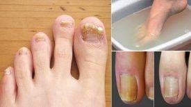 Faites tremper vos pieds dans un de ces mélanges pour vous débarrasser NATURELLEMENT d'une mycose des ongles … Votre médecin ne vous révélera jamais cette Astuce !