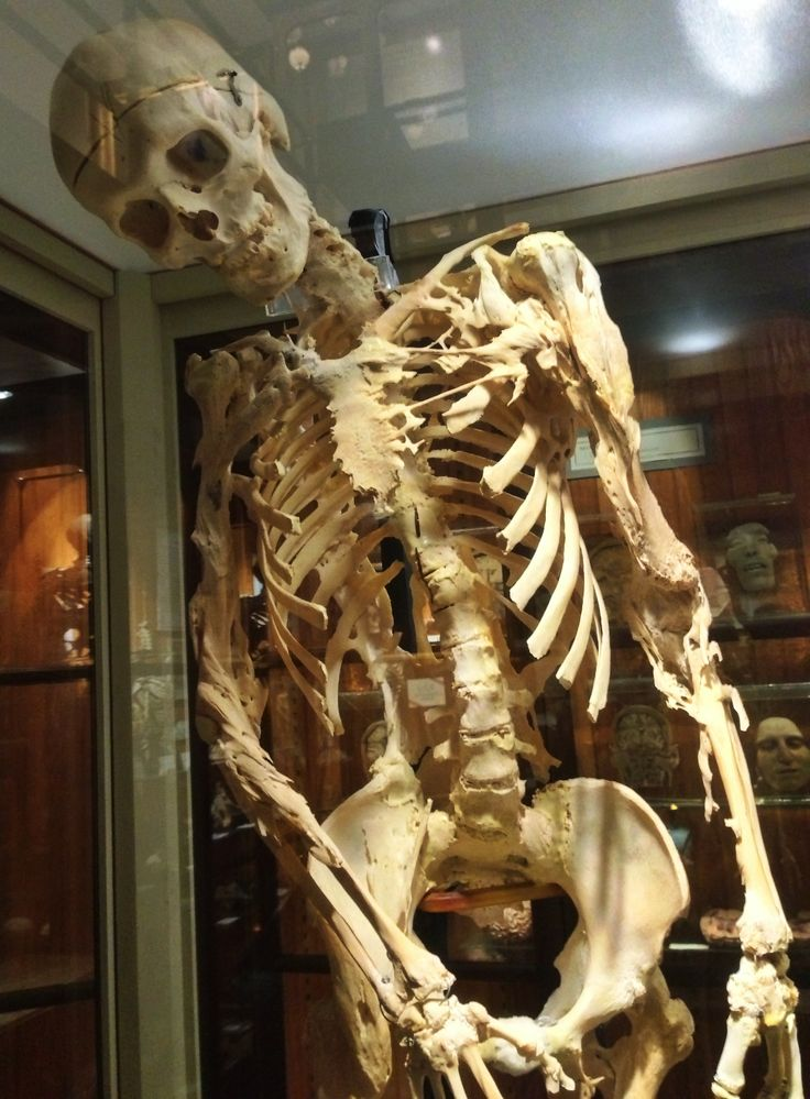 This is Harry Eastlack who had fibrodysplasia ossificans ...