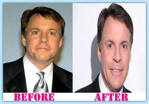 100 Ideas To Try About Celebretity Plastic Surgery