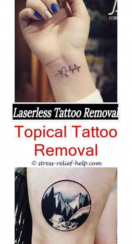 Removable Tattoo Ink How Much To Get A Tattoo Removed Uk