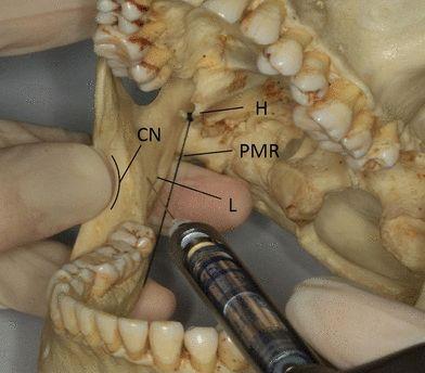 Applied anatomy of the pterygomandibular space: improving the success of inferior alveolar nerve blocks