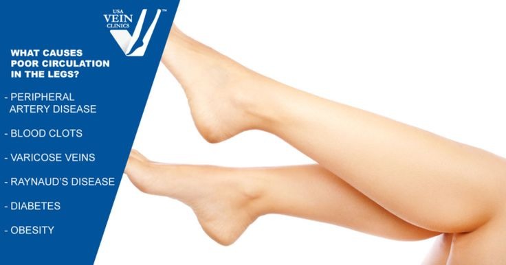 How to improve circulation in the legs improve leg