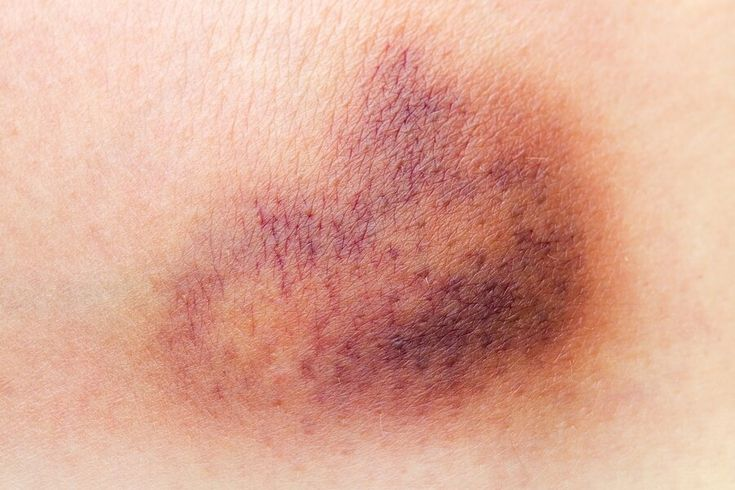 Bruises are caused by an injury where blood seeps out of the vessels causing…