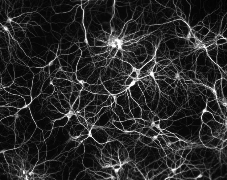 The brain, neurons. A neuron is (conceptually - if that's the right word) a fairly straightforward device. Signals come in through its dendrites and are added up.  If the sum exceeds a value, the neuron sends a signal out along its axon, which is connected to the dendrites of lots of other neurons.  Otherwise it stays schtum.