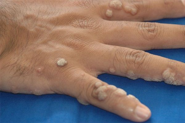 how-to-remove-warts-off-of-the-arm-without-surgery