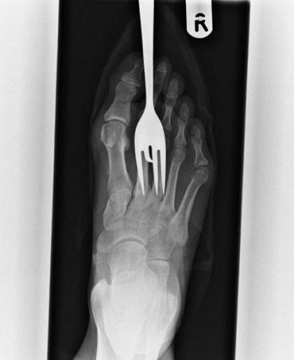 Awesome 25 Brutal X Rays That Are Hard To Look Away From