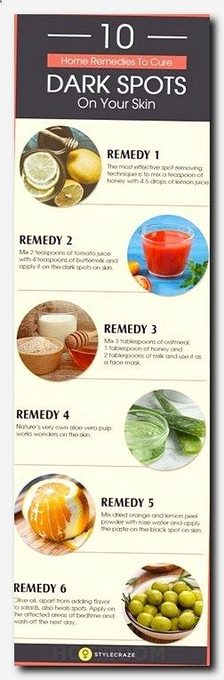 #skincare #skin #care how to get rid of small pimples, reverse skin, what causes acne on cheeks, wrinkles on chin, how to look more younger, common face skin problems, clean face routine, bodycare stores head office, domestic tips for glowing skin, white bumps on skin after sun, beauty tips urdu, health and beauty store, skin care definition, natural beauty tips for hair, natural remedies for acne, how to maintain your face skin