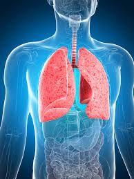 Obat Herbal Paru Paru Basah Pneumonia – Pneumonia atau lebih dikenal dengan paru paru basah merupakan radang yang disebabkan oleh infeksi virus atau bakteri dan mikroorganisme lainnya, obat-obatan tertentu, dan kondisi lain seperti penyakit autoimun. Radang paru paru basah juga bisa menjadi kronis ( Legionnaires ) yang dapat menyebabkan kematian.
