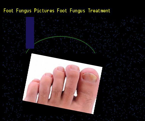 Foot fungus pictures foot fungus treatment - Nail Fungus Remedy. You have nothing to lose! Visit Site Now