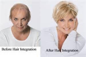 Natural Cures Hair Regrowth