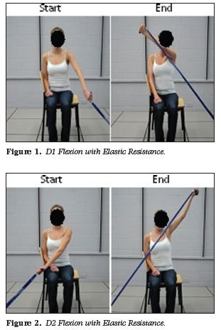 "Shoulder rehabilitation often includes Thera-Band® exercises. One popular exercise is the ""PNF"" diagonal shoulder exercise from the Proprioceptive Neuromuscular Facilitation concept. The PNF diagon..."