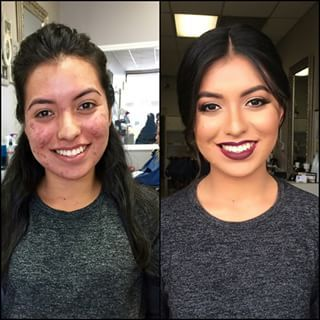 Arax aka Glamourax_ | 18 Insane Acne Transformations That Prove The Power Of Makeup