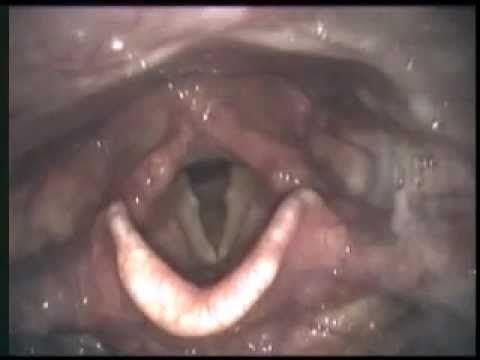 Modified Barium Swallow Study Archives | RehabGAB