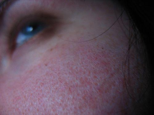 Was tun gegen große Poren? Hausmittel gegen große Poren im Gesicht & auf der Nase verkleinern und verfeinern großporige Haut. Hier finden Sie die besten Mittel!