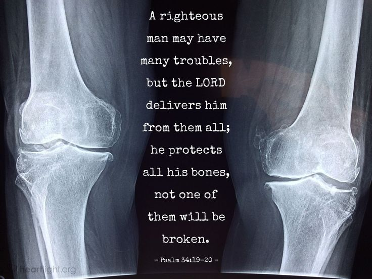 Psalm 34:19-20—A righteous man may have many troubles, but the LORD delivers him from them all; he protects all his bones, not one of them will be broken.