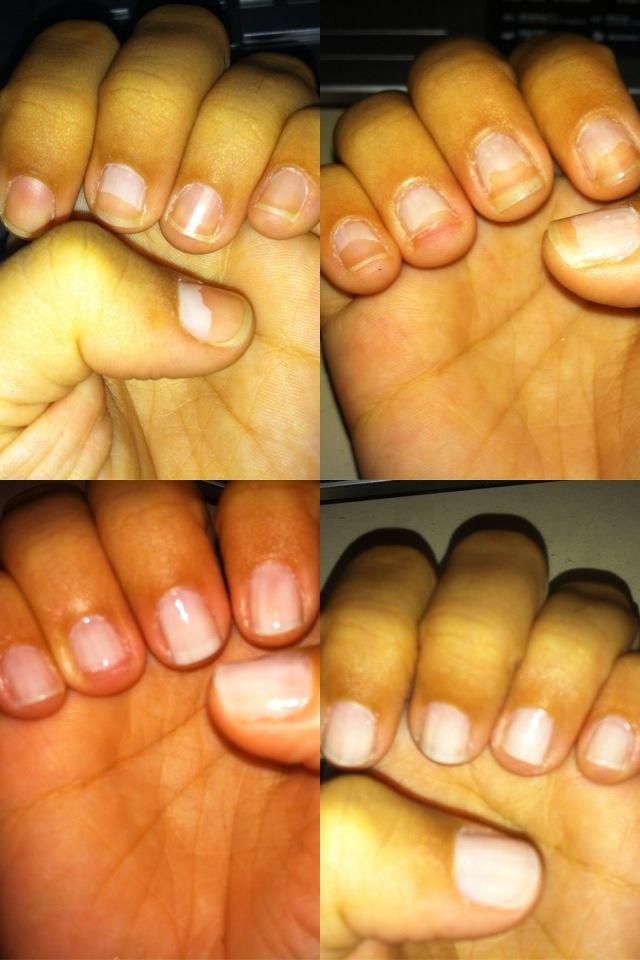 Dia 4, ontem minha unha do dedo anelar direito quebrou no talo. Tá doendo até agora. O pior é que ela tá do lado da unha que mais cresceu... Não vou lixar todas no talo por causa de uma, né?! Fala sério.  #nails