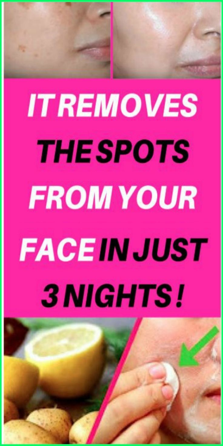 IT REMOVES THE SPOTS FROM YOUR FACE IN JUST 3 NIGHTS! – #Face #Nights #REMOVES #…