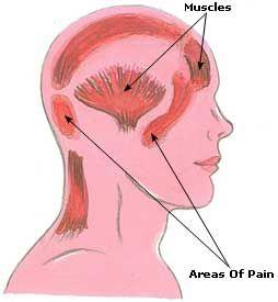 Natural Headache Remedies, Relief, Cure