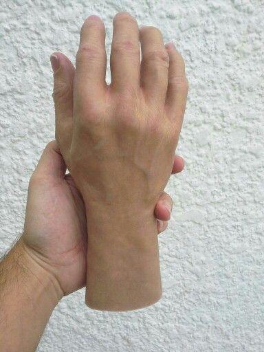Prótesis de mano