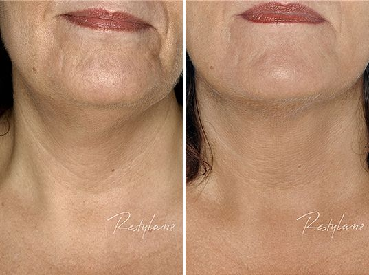 As the face ages there are certain features that change there place on the face.  For example the chin retracts back when we age, changing the profile of the face.  This patient has had chin filler put in to rectify and slow down the signs of aging.  Not only does it correct the profile, but the skin appear much smoother.