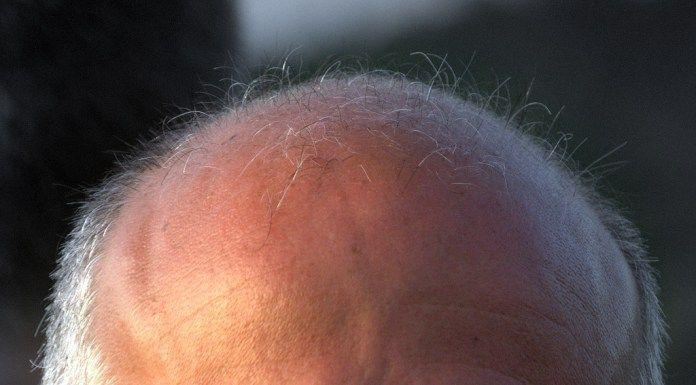 Úžasná maska proti vypadávání vlasů